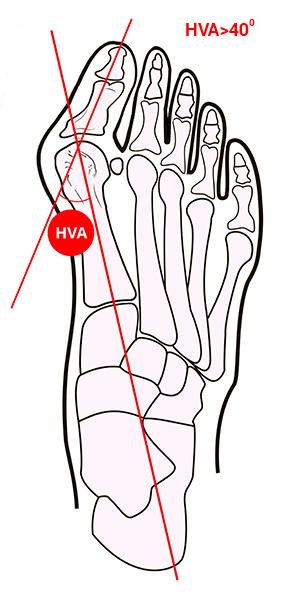 Лечение косточки на ноге димексидом