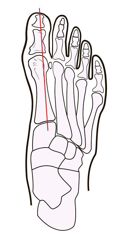 Косточки на ногах причины лечение удаление